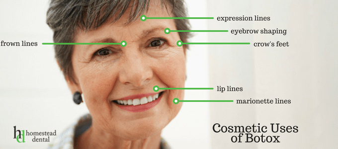 The cosmetic anti-wrinkle uses of botox injections