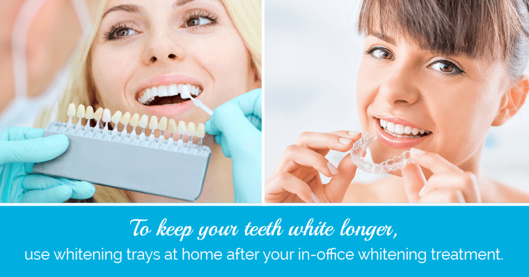 Use a combination approach to keep your teeth white longer after whitening