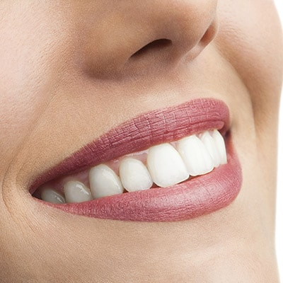 Dentist Highlands Ranch - close up of woman's teeth